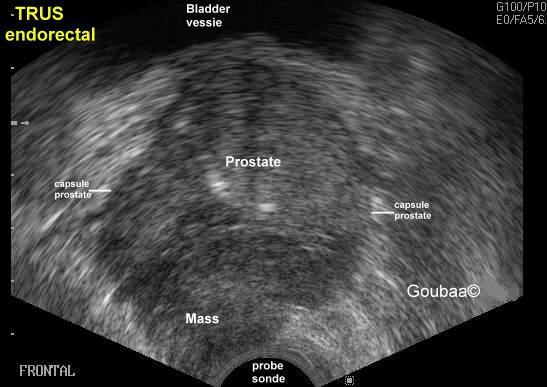ultrasound anatomy coloring book prostate zones sonography ultrasound prostate cancer radiology book ultrasound coloring anatomy